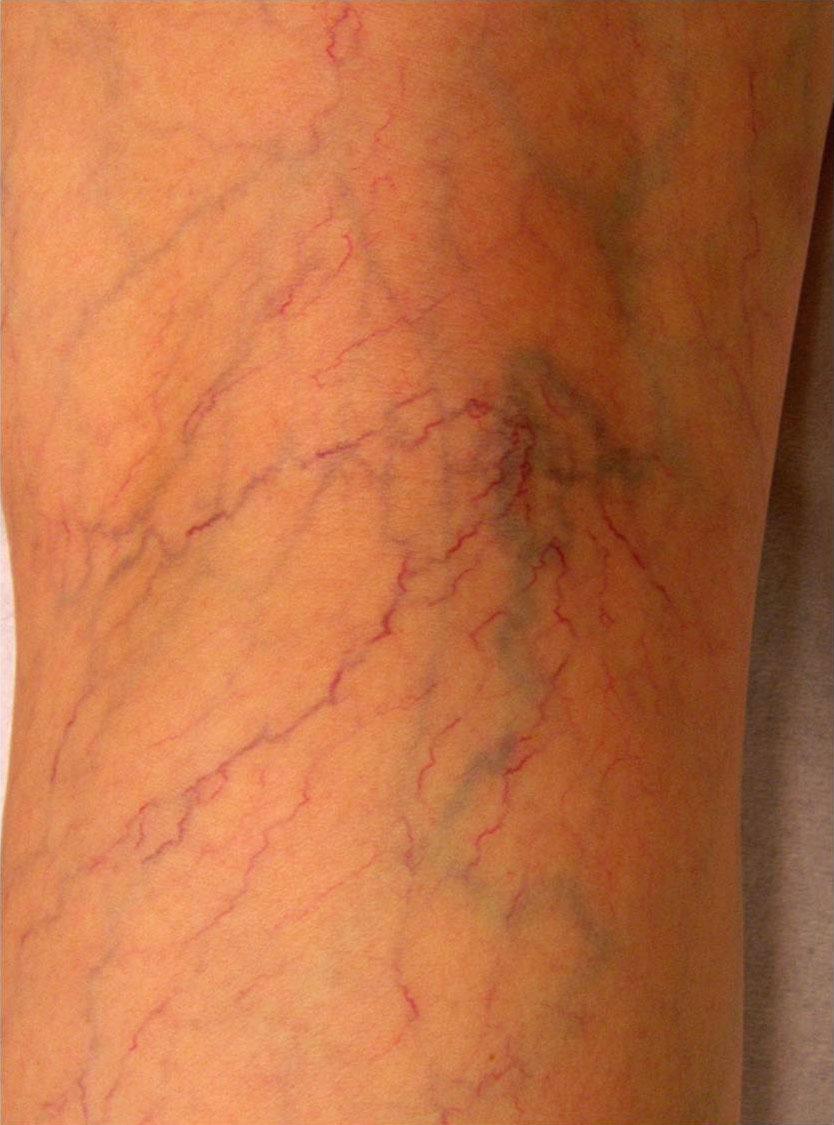 Quand faut-il penser à la chirurgie des varices?